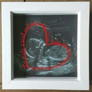 Full-size Baby Scan Photoframe